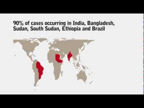 What do you know about Visceral Leishmaniasis (Kala Azar)?