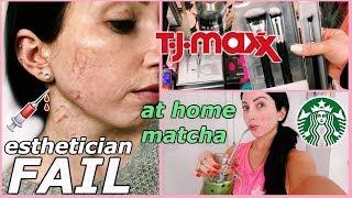 Got CUT from Dermaplaning, TJMaxx Makeup Shopping, Healthy Grocery Haul...VLOG