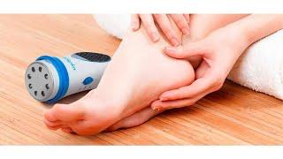 Натоптыши на пальцах ног болит