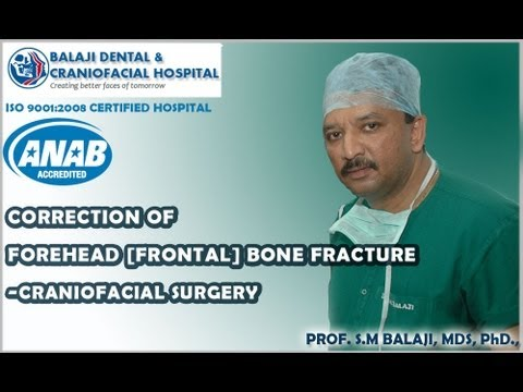 Correction of Forehead [Frontal] bone fracture -- Craniofacial Surgery - Dr SM Balaji