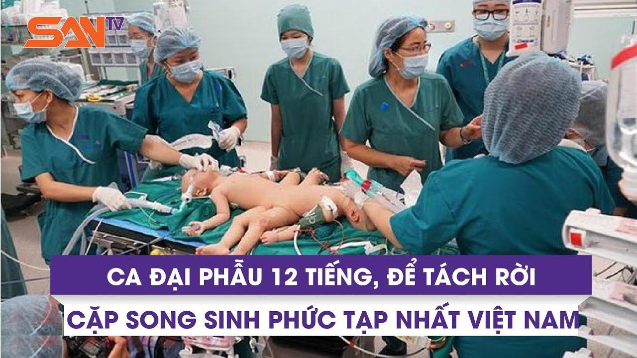 100 y bác sĩ đang thực hiện ca đại phẫu 12 tiếng, để tách rời cặp song sinh phức tạp nhất Việt Nam
