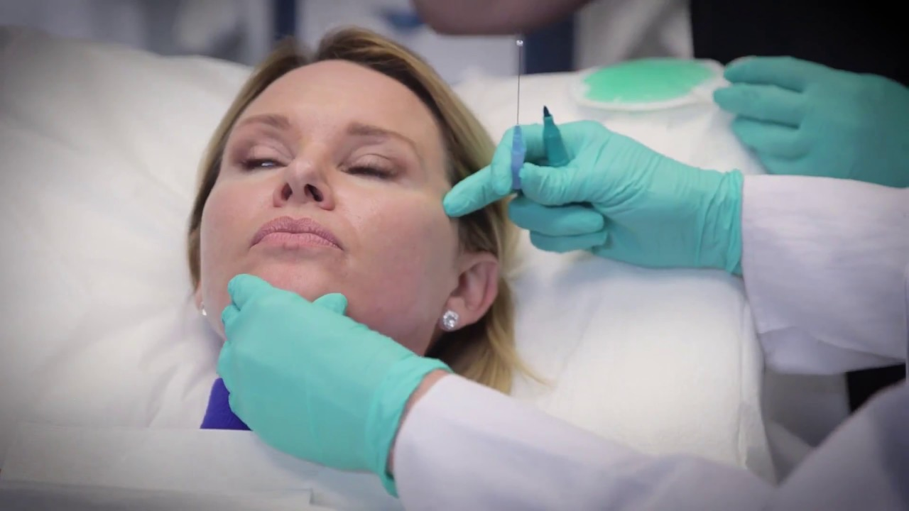 NovaThreads Non Surgical Facelift in Tampa FL