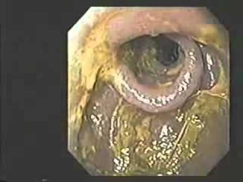 Dr Hiromi Shinya Kangen Water Case Studies Youtube
