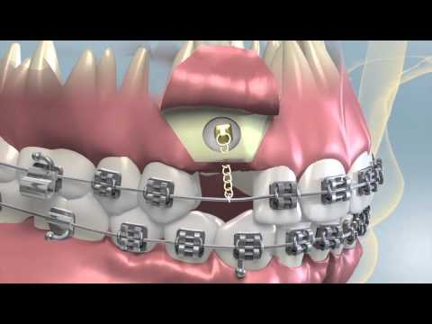 Impacted Canine Surgery