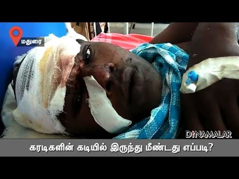 கரடிகளின் கடியில் இருந்து மீண்டது எப்படி? | Bear Attak | Madurai | Dinamalar