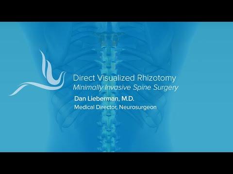 Direct Visual Rhizotomy  DVR at Phoenix Spine