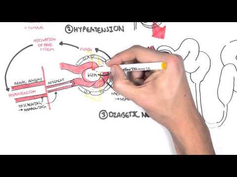 Chronic Kidney Disease (CKD)  Pathophysiology