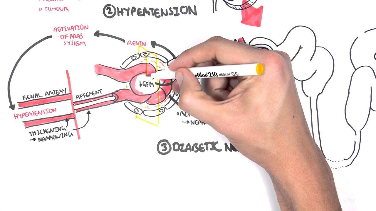 chronic kidney disease ckd pathophysiology [ 1280 x 720 Pixel ]