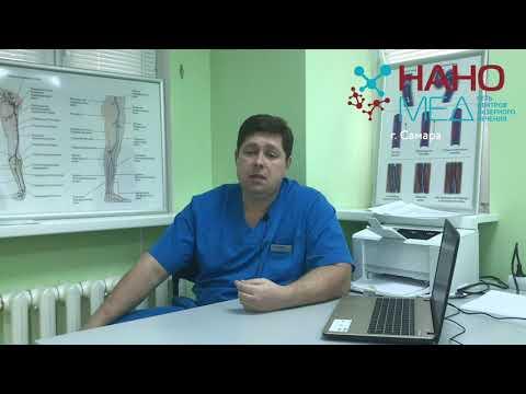 Евдокимов Виталий Юрьевич о кровоснабжении в ногах после операции