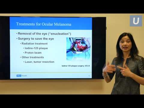 Uveal Melanoma, A Modern Approach to Ocular Oncology | #UCLAMDCHAT Webinar