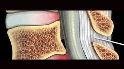 hqdefault - Diagnostic Ultrasound Back Pain