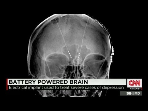Deep brain stimulation treats depression