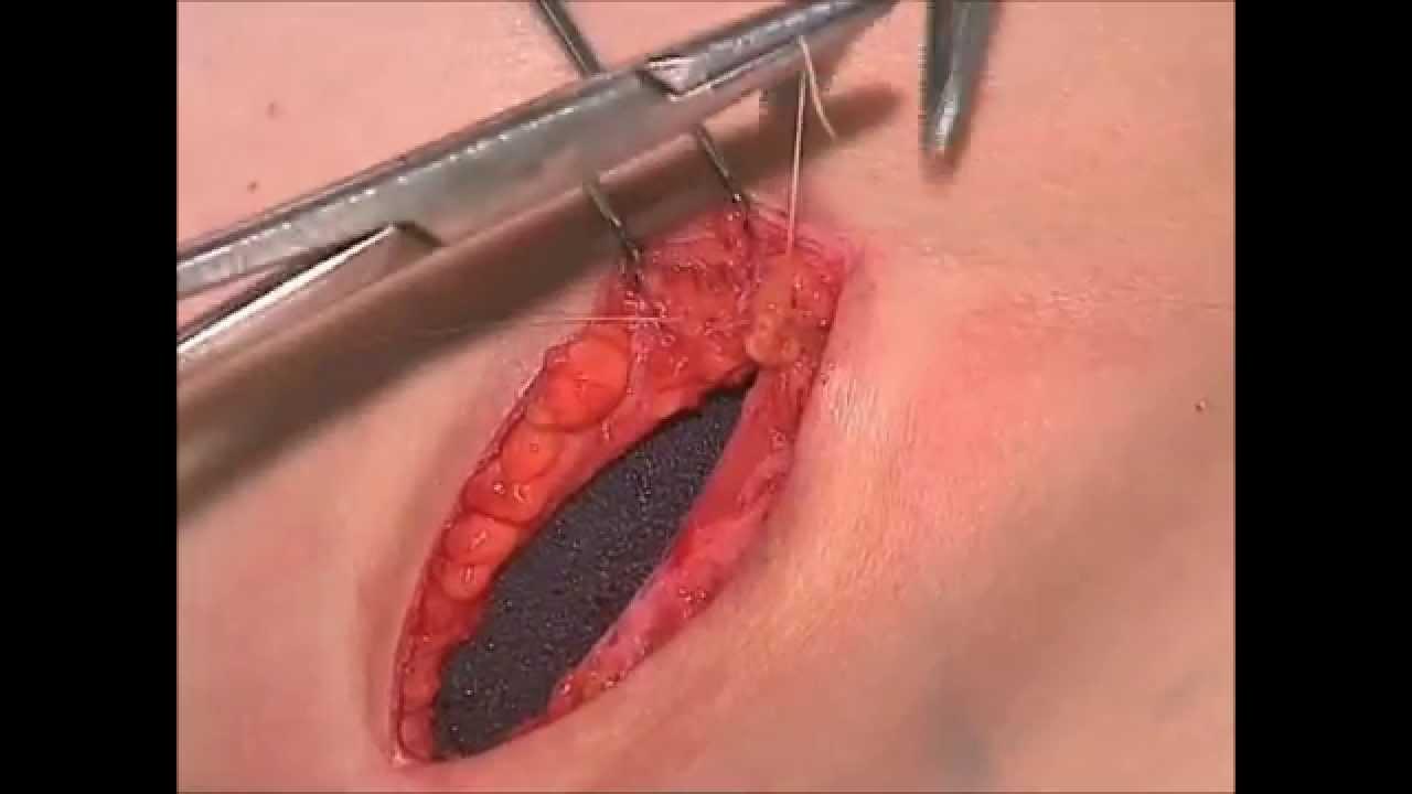 El simulador de la operación en el pecho