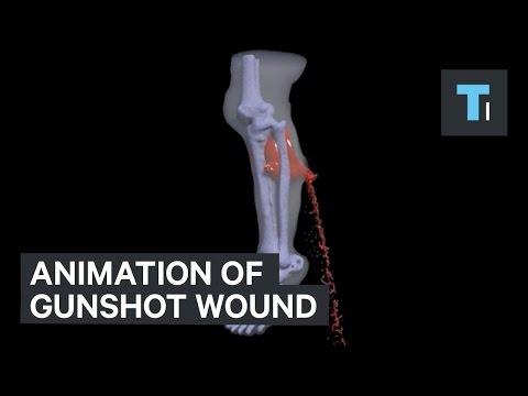 Animation of gunshot wound