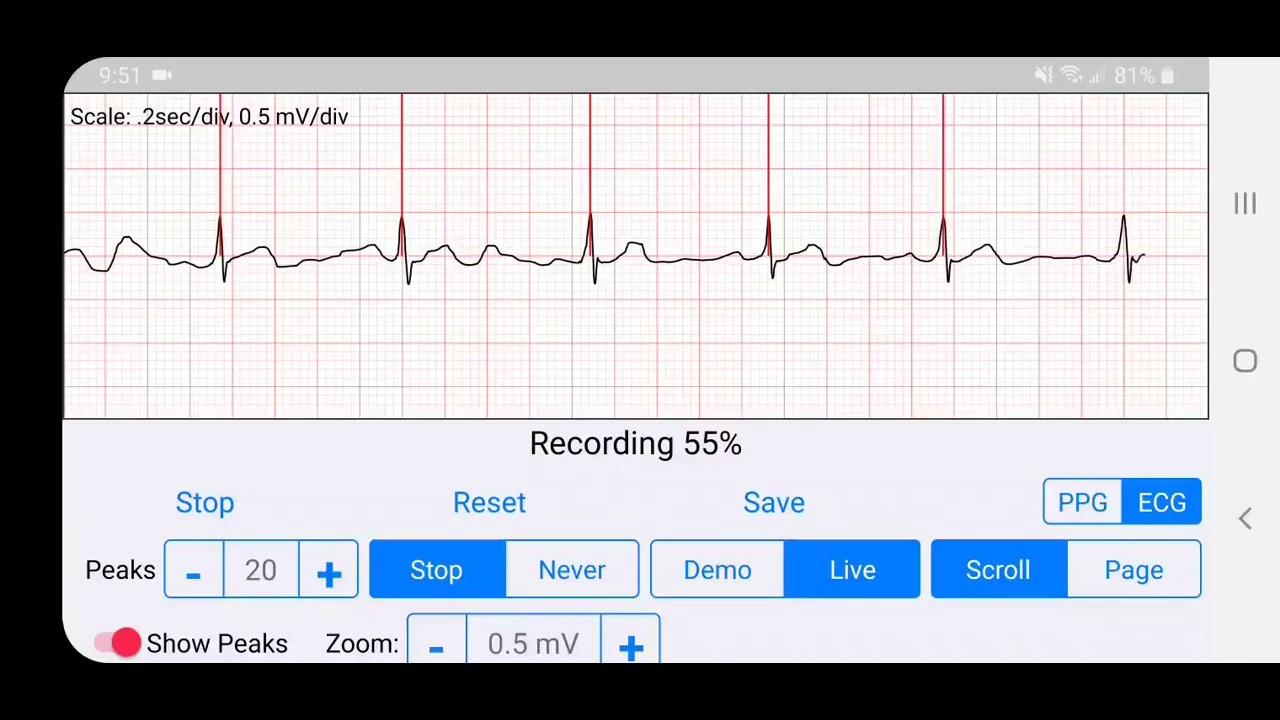 ECG Recording - YouTube