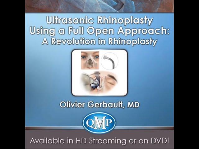 Ultrasonic Rhinoplasty using a full open approach: A revolution in rhinoplasty