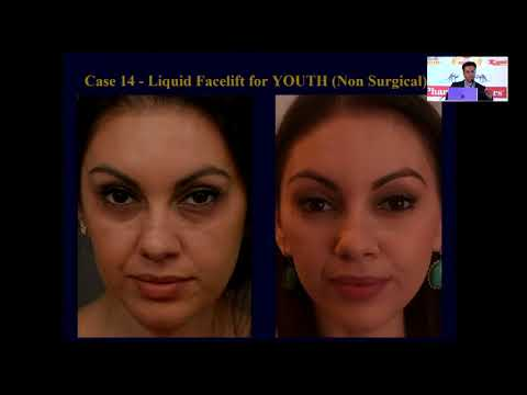 Dr. Debraj Shome on Facial Plastic Surgery & Pharma Leaders Power Brand Awarrds part 1