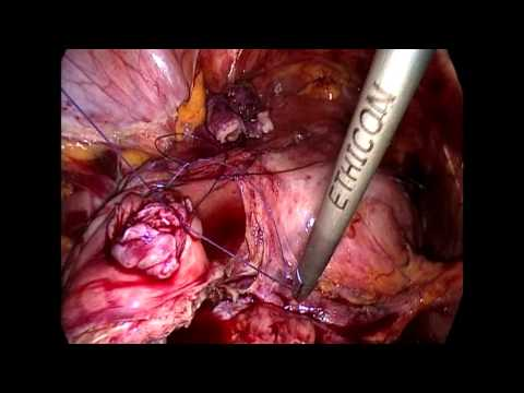 12 331URO Laparoscopic Boari Flap and Ileal Substitution Techniques for Urinary Tract Reconstruction