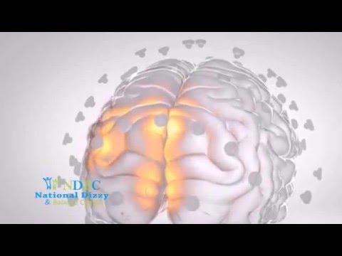 Commercial Brain Network Activation (BNA)