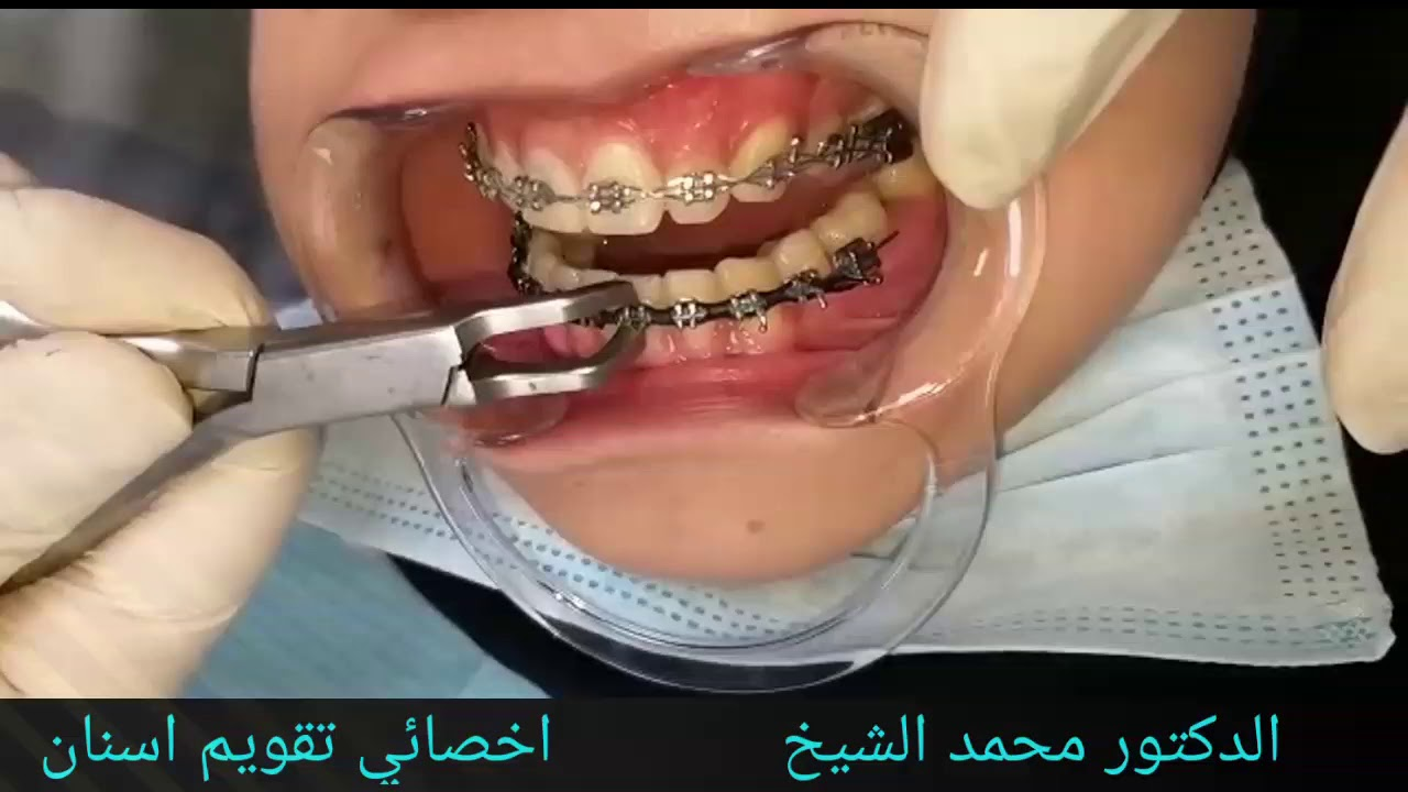 إيصال استحواذ تعليق افضل عيادة لتقويم الاسنان Sjvbca Org