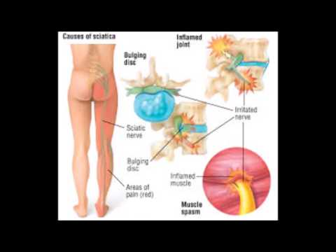 hqdefault - Sciatica Pain How Long Can It Last