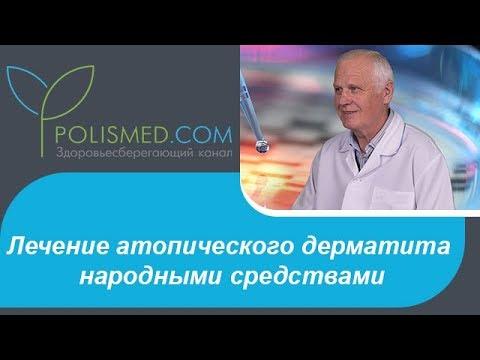 Лечение атопического дерматита народными средствами: ванны, травы, соль, сода, деготь, компрессы