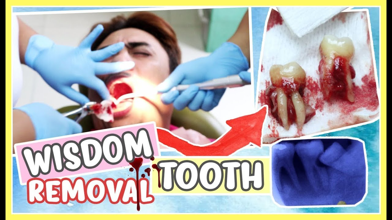 Impacted Wisdom Teeth Removal Cost Philippines - TeethWalls