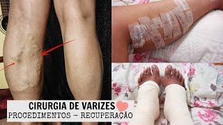 Um pernas médico das veias chamado de é o que