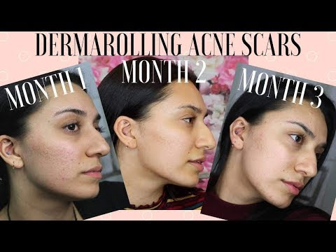 DERMAROLLING FOR 3 MONTHS!!! | Before & After