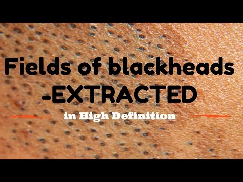 Blackhead fields- extractions in HD