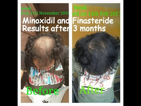 minoxidil-and-finasteride-results-after-3-months-usage