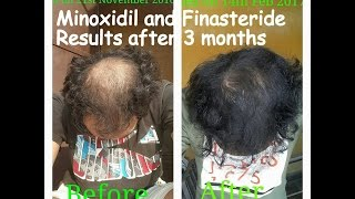 Minoxidil and Finasteride Results after 3 Months Usage thumbnail