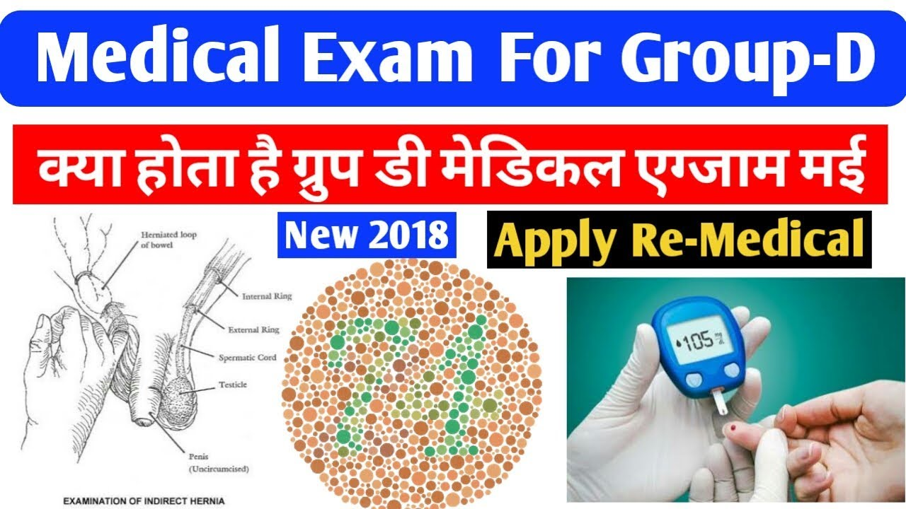 Medical Test for Railway GROUP- D 2018 Recruitment : Railway