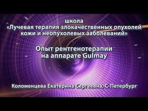 Коломенцева Е.С. — Опыт рентгенотерапии на аппарате Gulmay