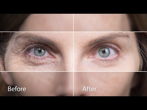 Quickly to diminish the visible signs of aging