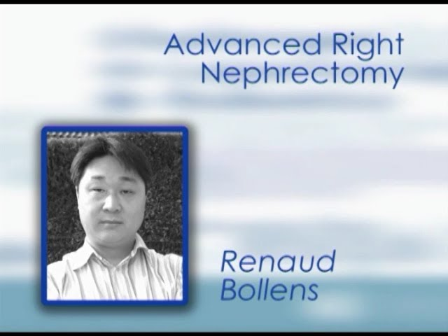 CILR 2011 - Renaud Bollens - Advanced right nephrectomy