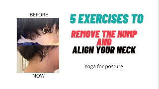 Align your neck | Remove your hump