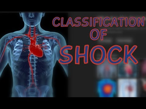 septic shock vs cardiogenic shock Septic shock  signs of shock may not become evident until a 50% lossof blood  volume in  the treatment of cardiogenic shock depends on its mechanism.