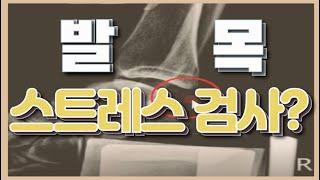 발목인대파열 시리즈 7 - 만성발목인대파열 스트레스 검…