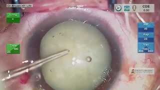 Complicated cataract surgery:Milky white but very dense NS by chop and without using staining -8