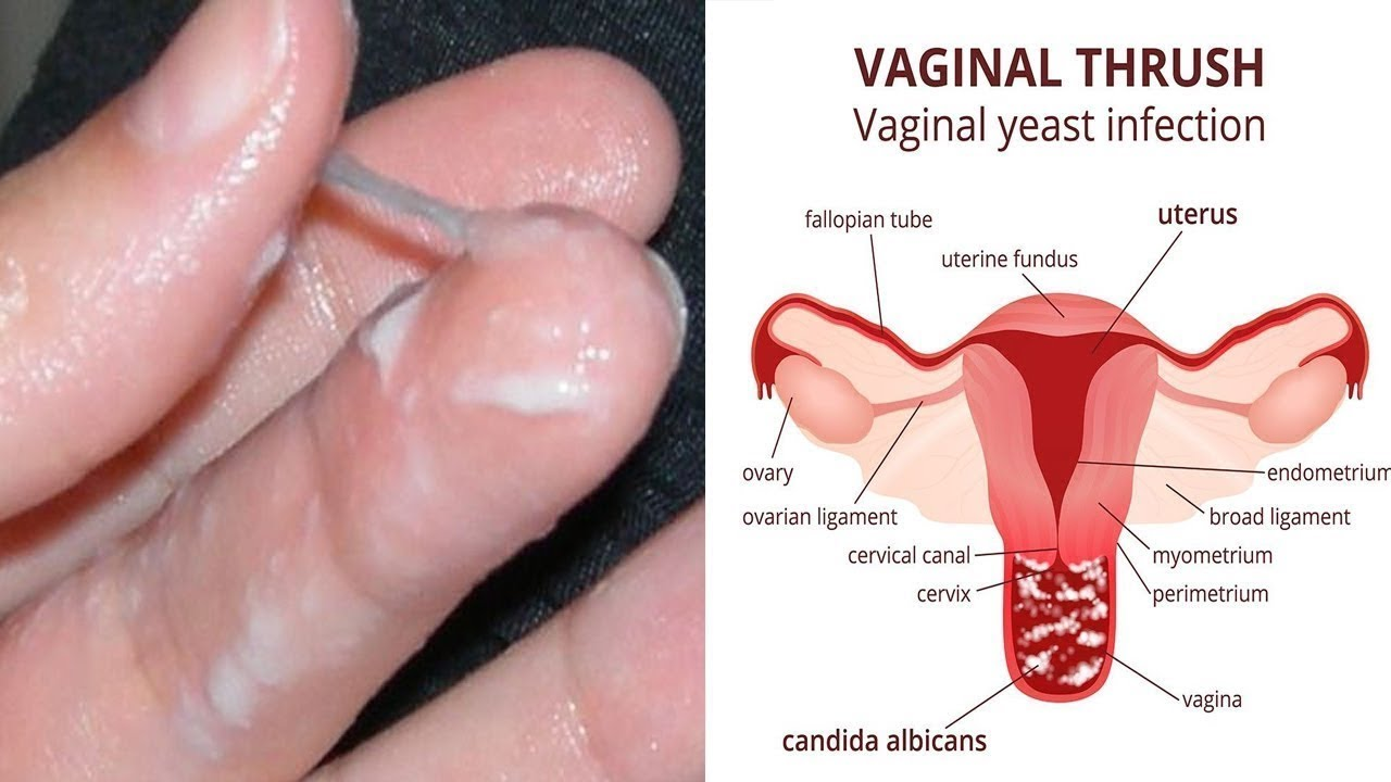 Oral Thrush Treatment, Symptoms, Contagious Period Remedies