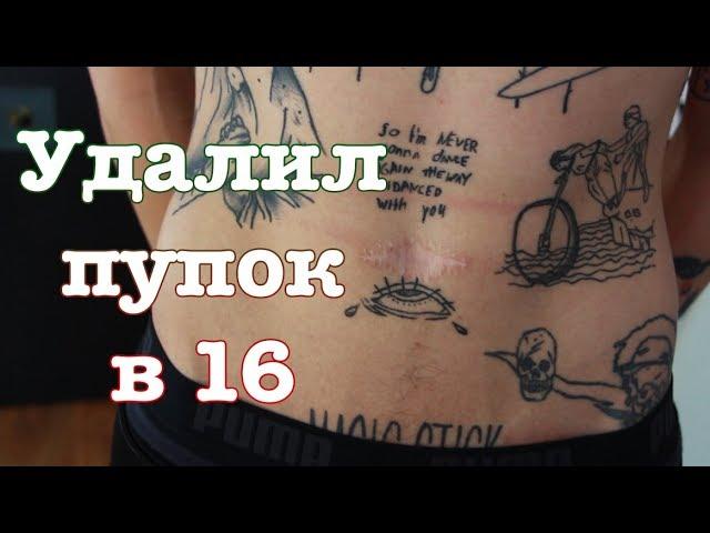 onlayn-video-na-pupke-video-frantsuzi-v-chulkah