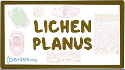 Lichen planus - causes, symptoms, diagnosis, treatment, pathology