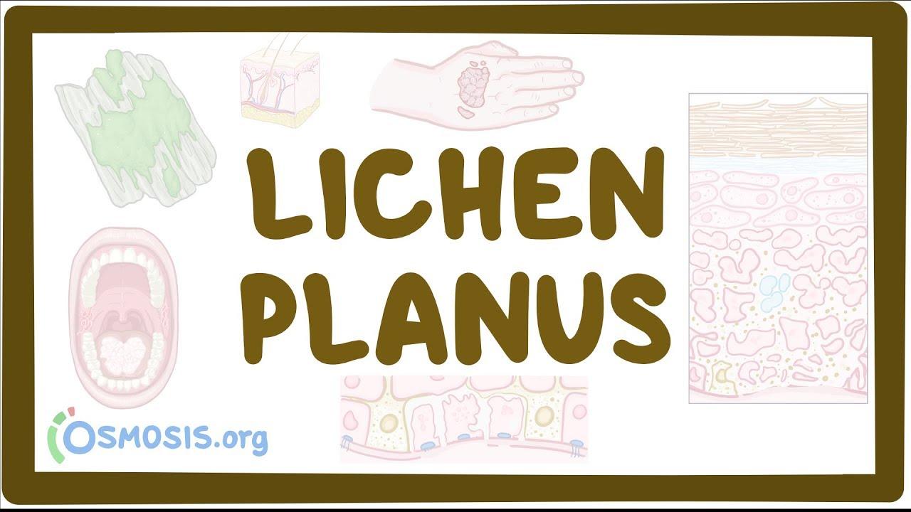 Lichen planus – causes, symptoms, diagnosis, treatment, pathology