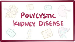hqdefault - Is Polycystic Kidney Disease Dominant Or Recessive