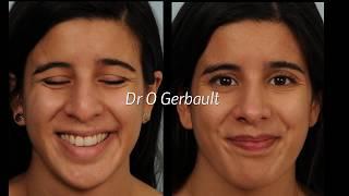Rhinoplastie ultrasonique 👃 Ultrasonic rhinoplasty