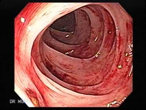 Colonoscopy of Diverticular Bleeding