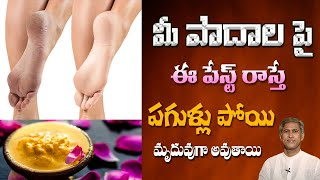 How to Treat Cracked Heels at Home | Tips to Get Smooth & Beautiful Feet | Dr.Manthena's Health Tips