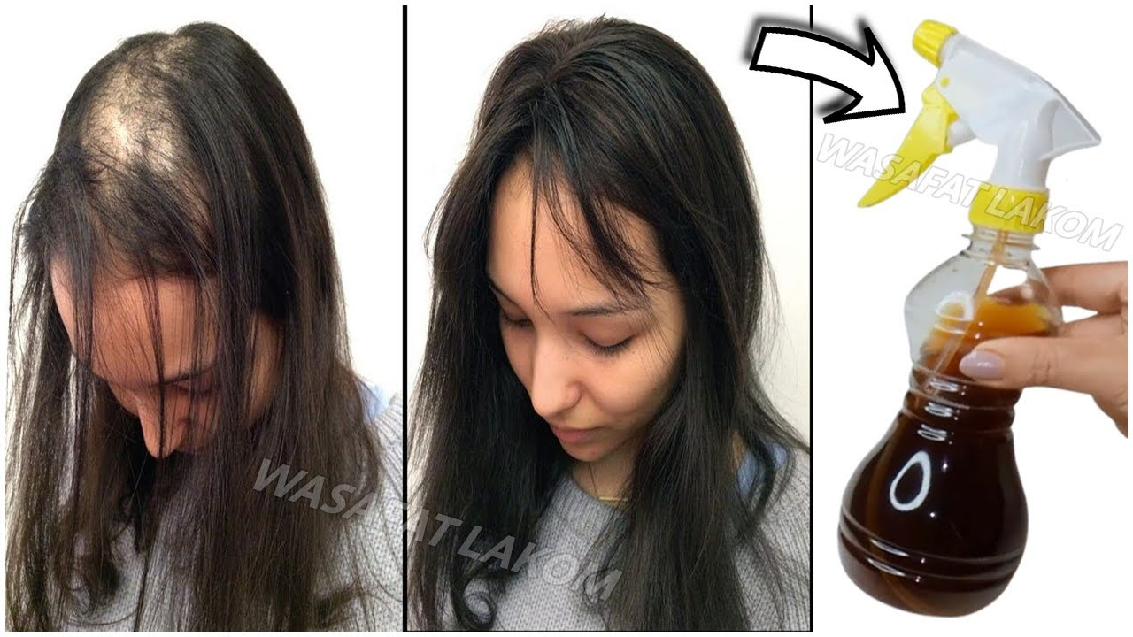 The Japanese secret , 🌿 to grow hair at a rocket speed and treat baldness from the first week