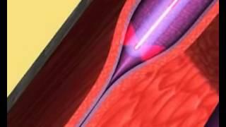 Флебология. Лечение заболеваний вен(Показана процедура лечения заболеваний вен., 2013-06-05T14:14:50.000Z)